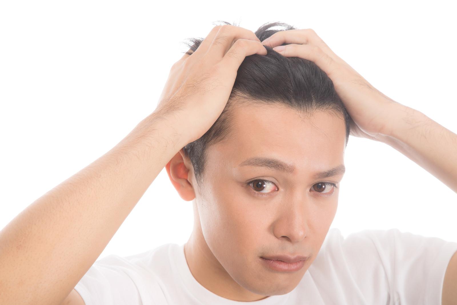 男のコンプレックス代表「ハゲ」や「薄毛」は克服しなくてもモテる